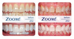 Zoom WhiteSpeed - Antes y Despues - Blanqueamiento Dental