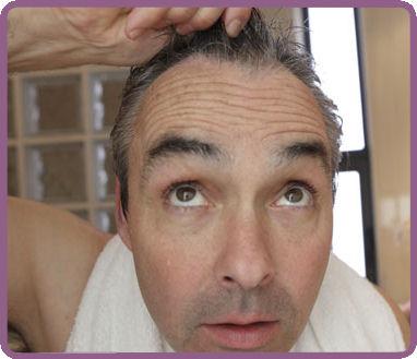 cómo solucionar la alopecia con técnicas fue o fuss